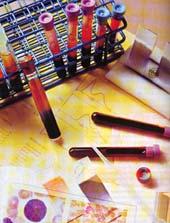 Медицина здоровье Спид Реферат Учил Нет  В 1982 году ученым удалось выяснить что причиной СПИДа является вирус который поражает клетки иммунной системы человека делая их неспособными защищать