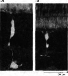 Биология Биполярные горизонтальные и амакриновые клетки Реферат  Биполярные горизонтальные и амакри новые клетки А Деполяризующаяся биполярная клетка оп центра золотой рыбки с введенным флуоресцентным красителем