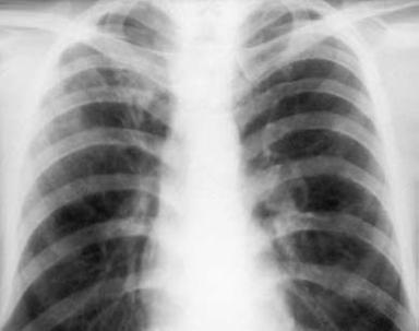 Медицина здоровье Рентгендиагностика очагового туберкулеза   образовавшихся в период первичной инфекции или после нее а также может явиться исходом других форм туберкулеза диссеминированного инфильтративного