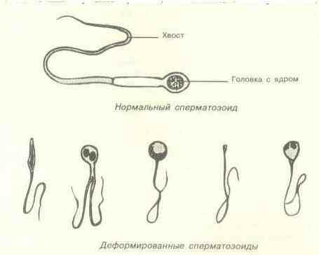 Плохое развитие сперматозоидов